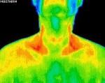Underactive Thyroid